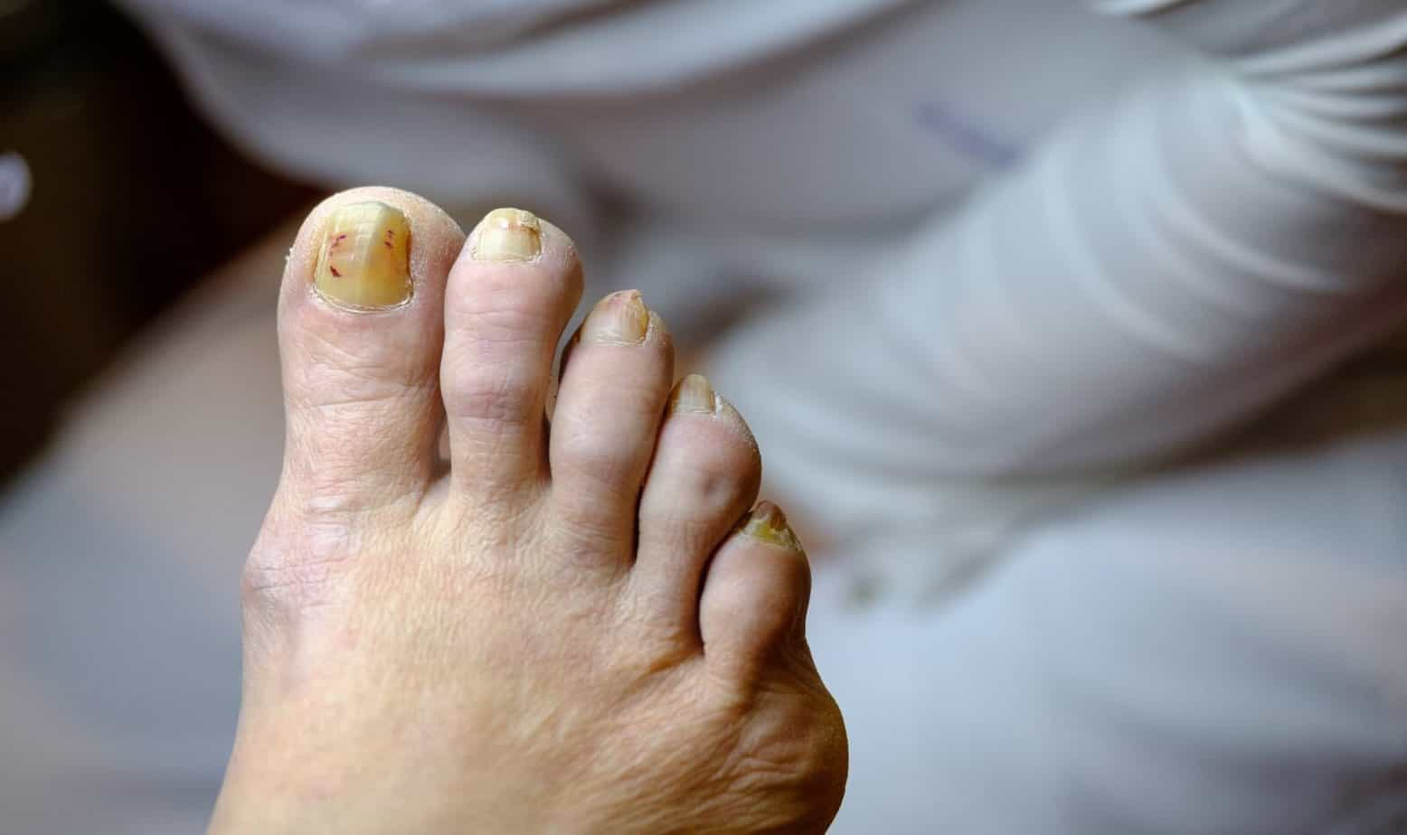 Sick unhealthy nails on the foot of a man
